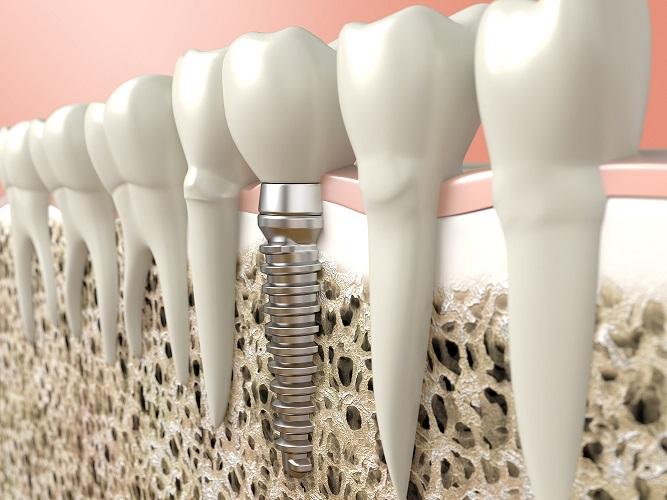 美しい歯の秘密!芸能人でインプラント治療を行っている人は多い?のサムネイル画像